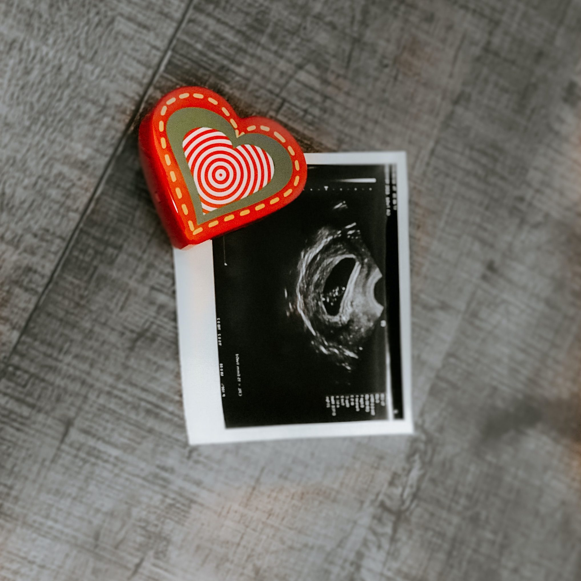 Slika zarodka